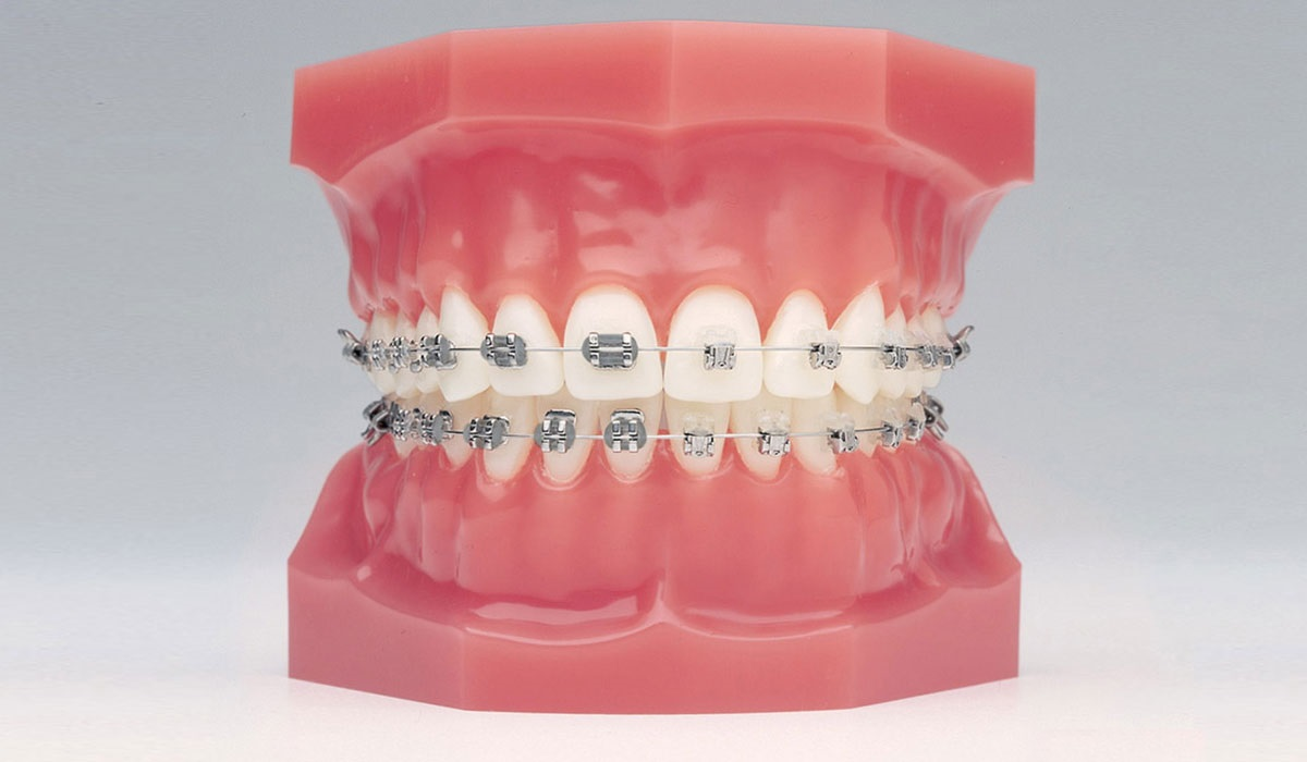 Traction Orthodontique